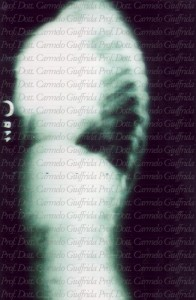 ipercifosi-osteocondrite-giovanile-Scheuermann-morbo di Scheuermann-dorsale-dorso curvo-cifosi dorsale-Prof. Carmelo Giuffrida-Catania-3