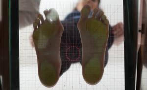 Piede cavo-Alluce valgo-piedi cavi-piede piatto-piedi piatti-piede-piedi-plantoscopia-podoscopia-Prof. Carmelo Giuffrida-Catania-3