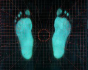 Piede piatto-piedi piatti-piede-piedi-ginnastica correttiva-Prof. Dott. Carmelo Giuffrida-Catania-4