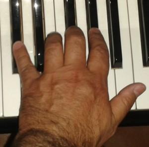 malattia di Parkinson-morbo-Parkinson-Attività Fisica-Prof. Carmelo Giuffrida-Catania-7