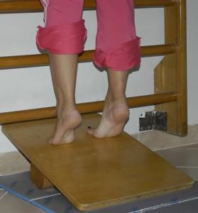 frattura da stress-microtrauma-osso-atleta-riabilitazione-rieducazione-motoria-riatletizzazione-Prof. Carmelo Giuffrida-Catania-2