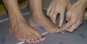 Piede cavo-Alluce valgo-piedi cavi-piede piatto-piedi piatti-piede-piedi-plantoscopia-podoscopia-Prof. Carmelo Giuffrida-Catania-2