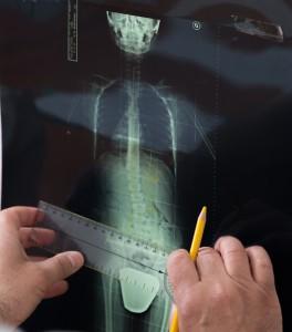 Studio del Prof. Dott. Carmelo Giuffrida-Catania-Postura-Attività Fisica Adattata-Chinesiologia-6