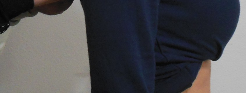 Postura-posturologia-posturologo-scoliosi-mal di schiena-ipercifosi-iperlordosi-Prof. Carmelo Giuffrida-Catania-2