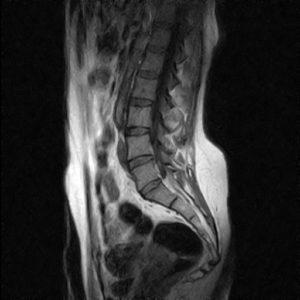 coccigodinia-dolore al coccige-attività fisica-adattata-esercizio fisico-osteopatia-postura-Prof. Carmelo Giuffrida-Catania