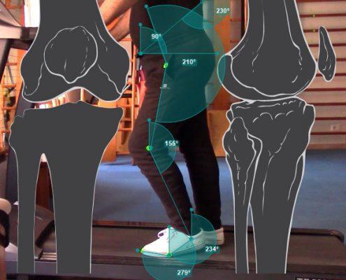 valutazione della stabilità del ginocchio presso lo Studio del Prof. Carmelo Giuffrida a Catania Immagine di repertorio