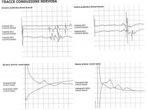Elettroneurografia-Pavimento Pelvico e perineale-perineo-nervo pudendo-pudendalgia-vulvodinia-incontinenza-Prof. Carmelo Giuffrida-Catania