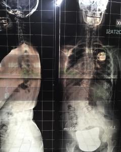 scoliosi e pacemaker-ginnastica correttiva-scoliosi-Prof. Carmelo Giuffrida-Catania