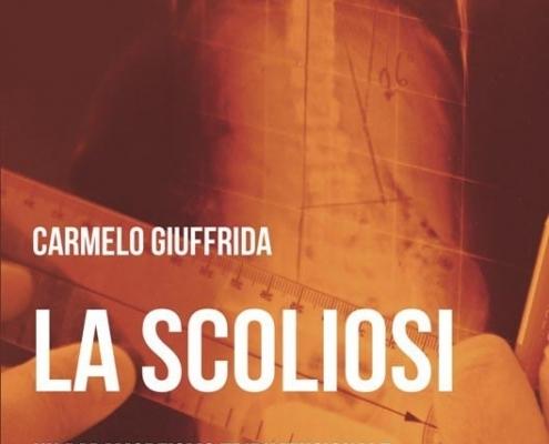 Libro la scoliosi di Carmelo Giuffrida