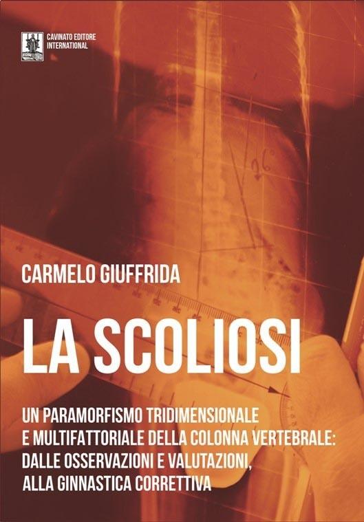 MondoOggi by GlobalNews e il libro LA SCOLIOSI di Carmelo Giuffrida