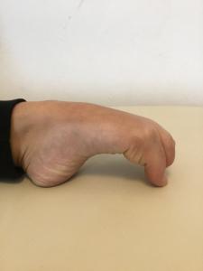 Sindrome di Ehlors-Danlos-ipermobilità articolare-iperelasticità muscolare-Studio Prof. Carmelo Giuffrida-Catania-1