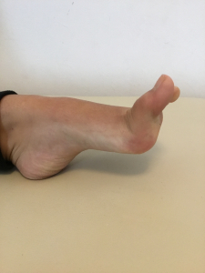 Sindrome di Ehlors-Danlos-ipermobilità articolare-iperelasticità muscolare-Studio Prof. Carmelo Giuffrida-Catania-2