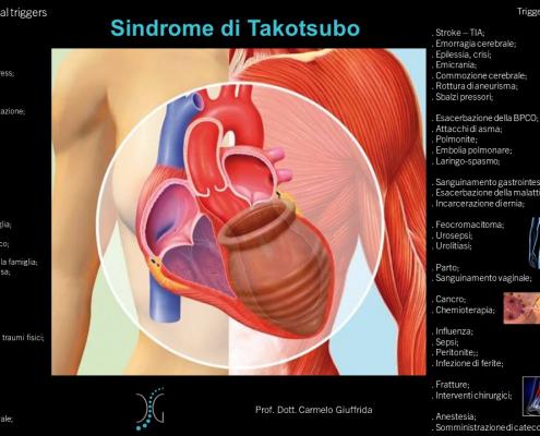 Sindrome di takotsubo-Infarto del cuore-cardiomiopatia-Prof. Carmelo Giuffrida-Catania